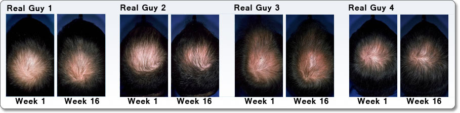 In a clinical study, ROGAINE Foam was shown to regrow hair in 85 percent of men after four months when used twice daily.*
